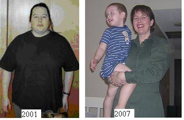 Morbid Obesity And Weight Loss Surgery Weight Loss Families Com