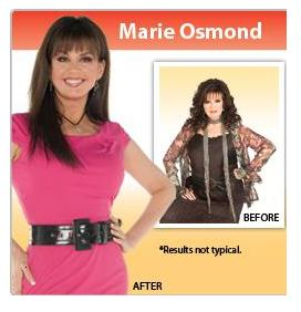 Has Marie Osmond Had Cosmetic Surgery?
